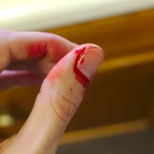 Jonavos rajone per konfliktą aštriu daiktu sužalota moteris