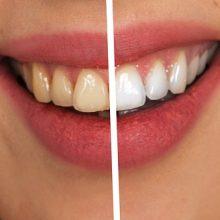 Balti ir sveiki dantys: svarbiausios priežiūros taisyklės