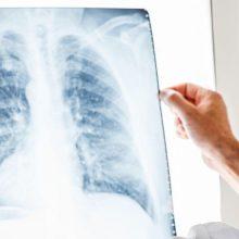 Gydytoja: XXI amžiuje vaikai neturėtų sirgti tuberkulioze