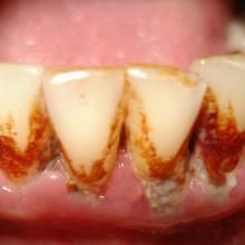 Vietoj baltos šypsenos – margi dantys