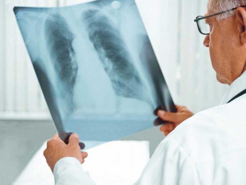 Sergantiesiems tuberkulioze – svarbi žinia