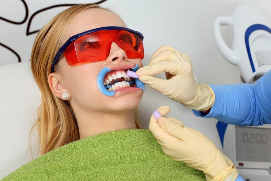 Ką turėtume žinoti apie dantų balinimą?