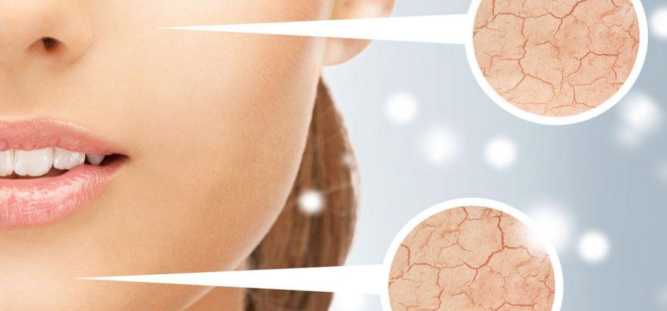 Kas labiausiai kenkia veido odai?