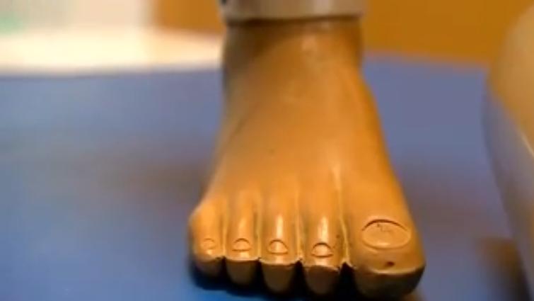 Kojų protezai – iš vandentiekio vamzdžių ir padangų gumos
