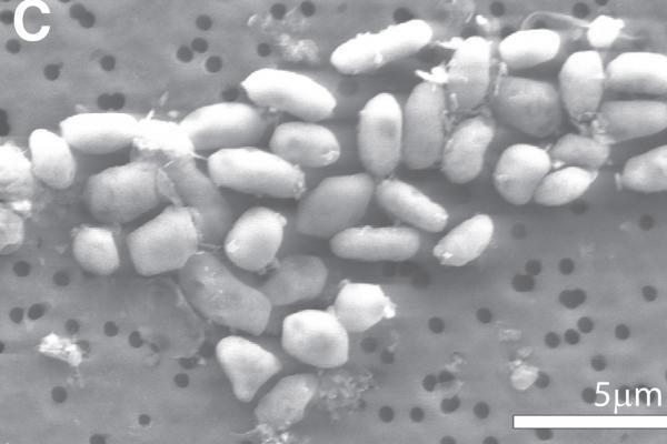Arsenu mintanti bakterija kelia mokslines diskusijas