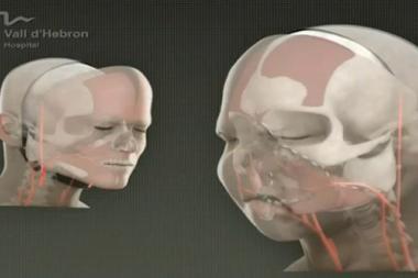Atlikta pirmoji viso veido persodinimo operacija