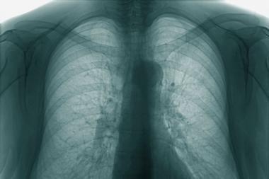 Klaipėdos apskrityje sumažėjo susirgimų tuberkulioze