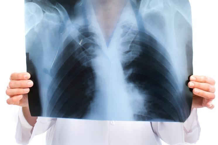 Brangus rentgeno aparatas Kauno ligoninėje metus guli neišpakuotas