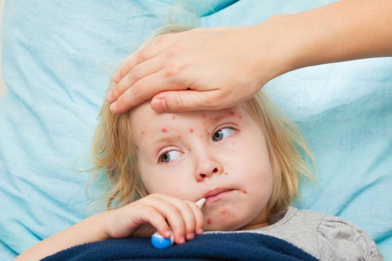 Kaune  daugėja susirgimų vėjaraupiais