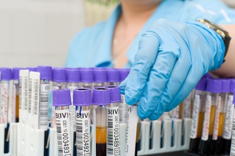 Klaipėdoje bus galima nemokamai pasitikrinti dėl ŽIV