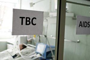 Neringos ugdymo įstaigoje – atviros tuberkuliozės atvejis