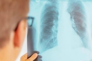 Nauji vaistai ir tyrimai teikia vilties įveikti tuberkuliozę