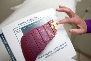 Hepatitas C – nebyli liga, nusinešanti milijonus gyvybių