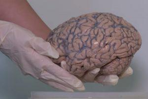 Belgija gavo didžiausią pasaulyje užkonservuotų smegenų kolekciją