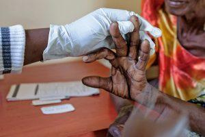 Afrikoje bus dideliu mastu išbandyti skiepai nuo maliarijos