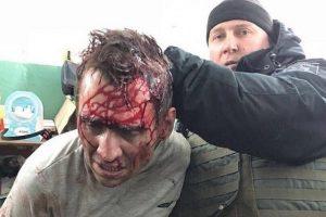 Charkove pašto skyrių užgrobęs užpuolikas sučiuptas per policijos šturmą
