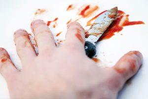 Motiną peiliu sužalojo mažamečio akivaizdoje