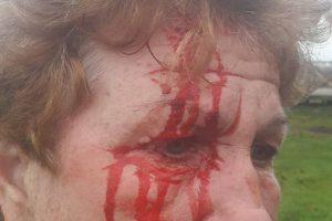 Kraupus medžiotojo išpuolis: sužalojo moterį ir šaukė, kad užmuš