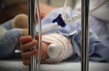 Neįtikėtinas žiaurumas: medikai kovoja dėl sumuštos mergaitės gyvybės